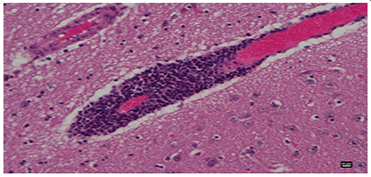 Mycoplasmas in the Brains of Animals: An Overlooked Site of Infection-Clyto Access